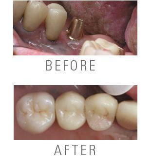 implant_ba.jpg