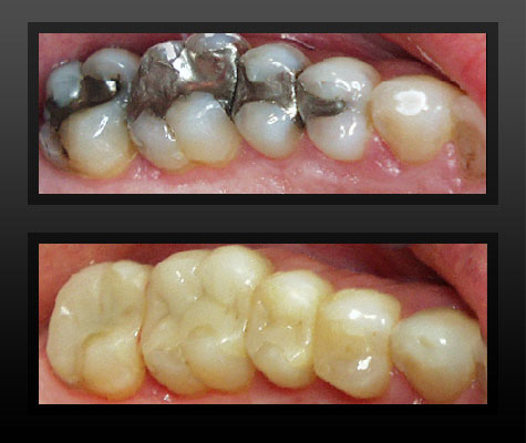 toothcoloredfillings.jpg