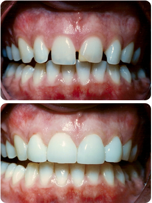 veneers-before-after.png