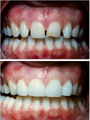 veneers-before-after.png
